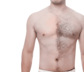 Best Men Hair Removal Creams In India Best India Price